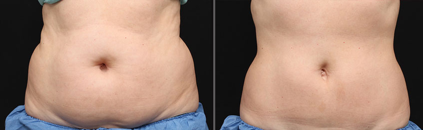 The Game-Changing Fat Loss Treatment Millions Have Tried – Coolsculpting®