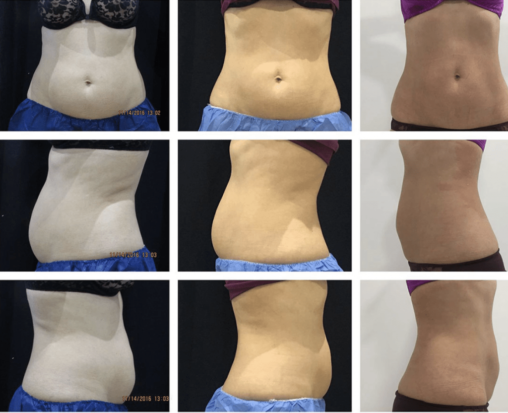 Coolsculpting Women Before and After