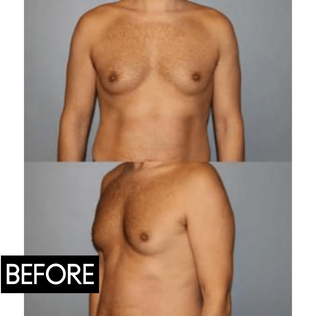 coolsculpting male before and after