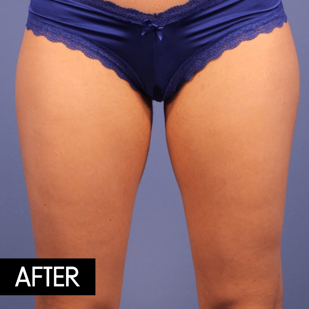coolsculpting legs after