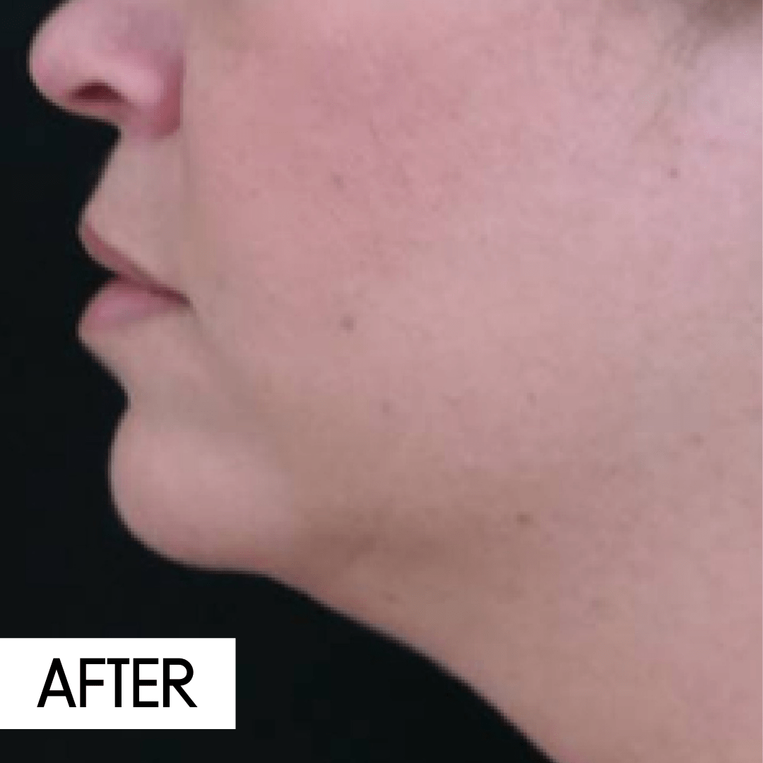 coolsculpting chin after