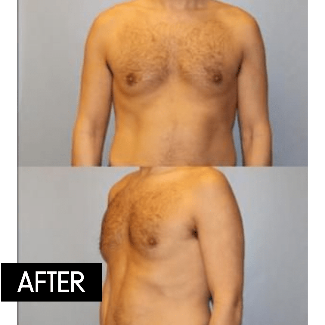 coolsculpting men before and after