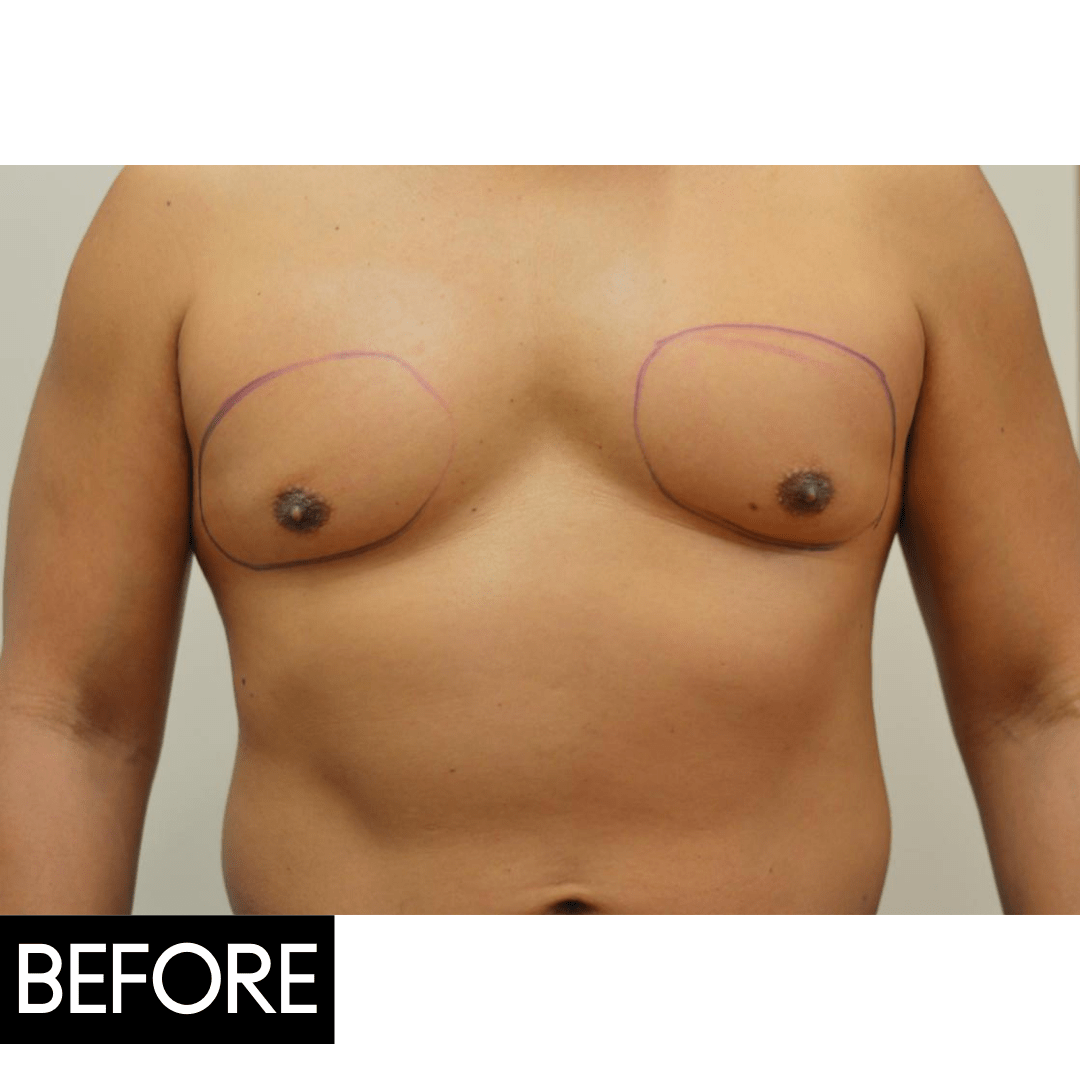 coolsculpting chest before