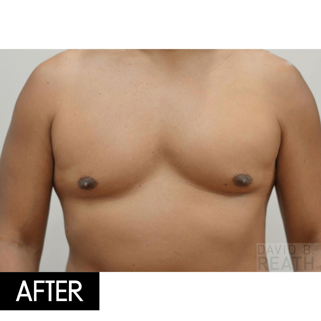 coolsculpting chest after